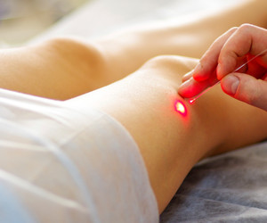 Varicose laser treatment