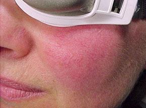 kilcal-damar-tedavisi